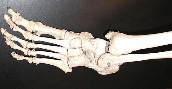 Fußknochen Osteoporose