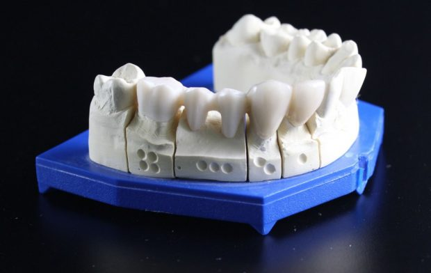 tooth-replacement-759928