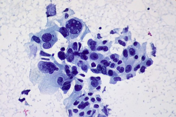 Foto:  Non-small Cell Carcinoma of the Lung, FNA, Ed Uthman, Flickr, CC BY-SA 2.0